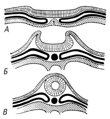 Эмбриональное развитие мозговой трубки (схема)
